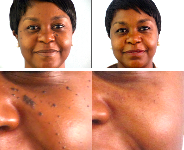 Mole Removal Treatment Before and After